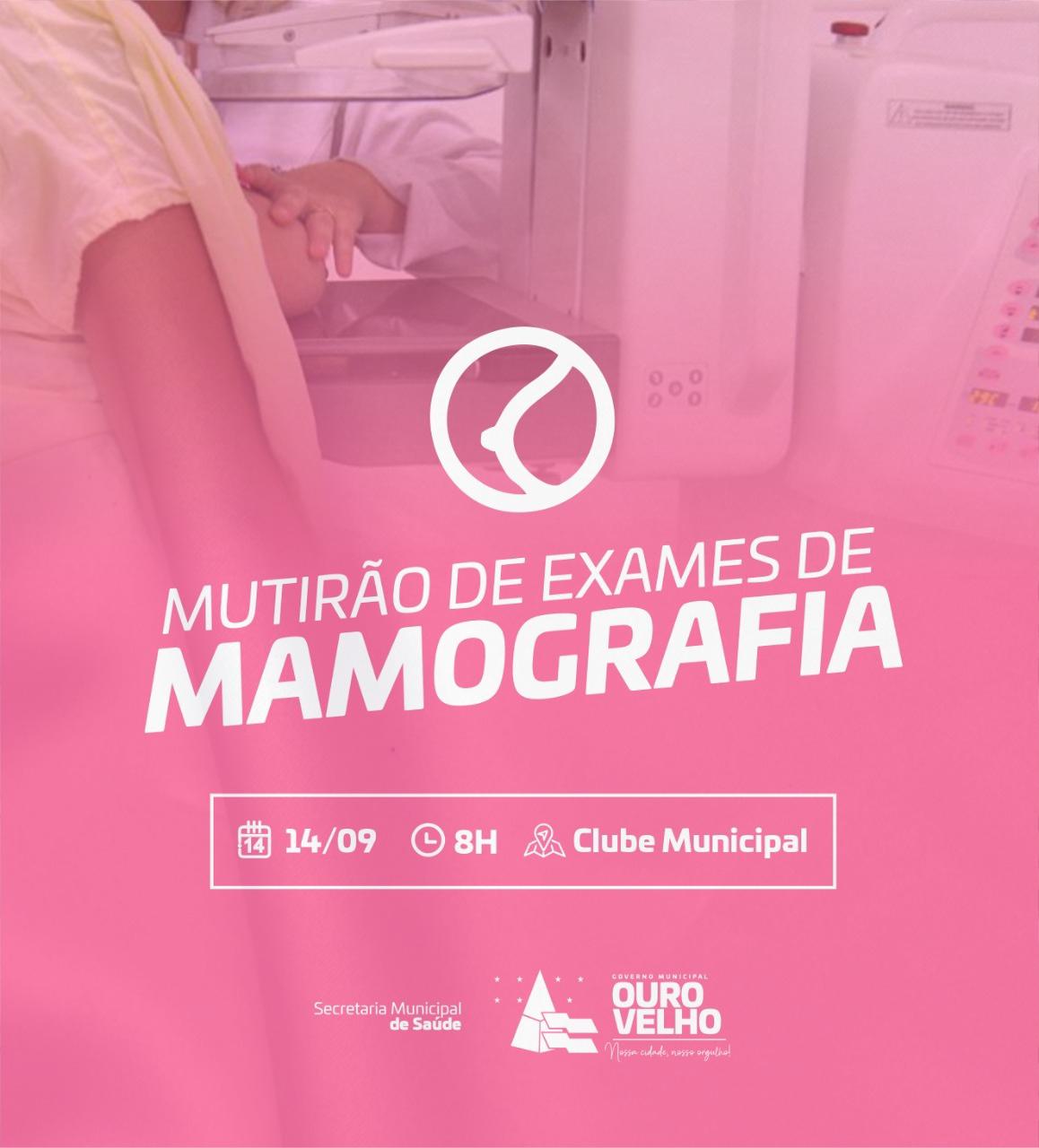 Prefeitura de Ouro Velho realiza mutirão e vai zerar fila de exames de mamografia